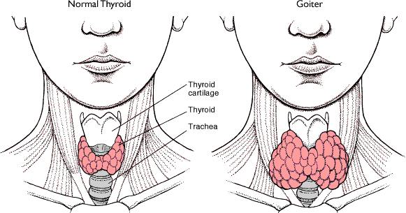 Obat Tiroid Untuk Anak